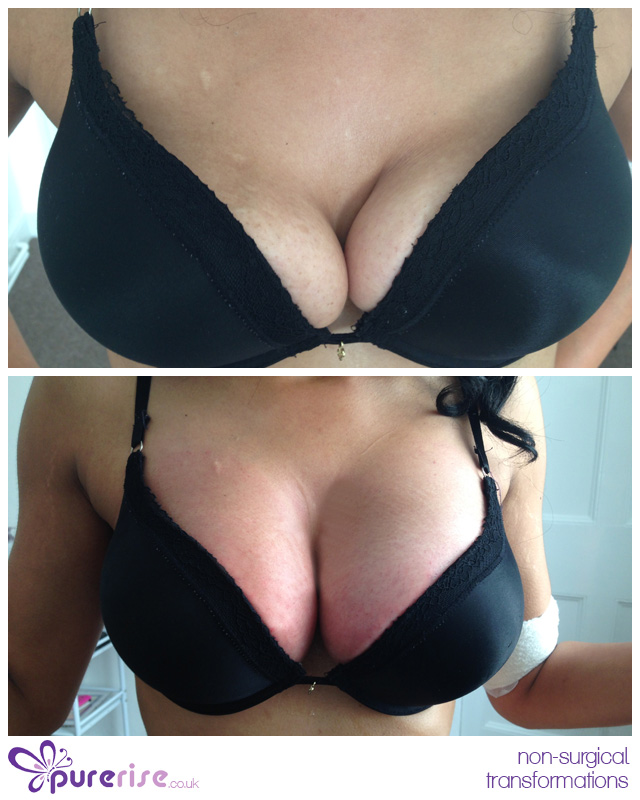 Ultimate breast lift pictures